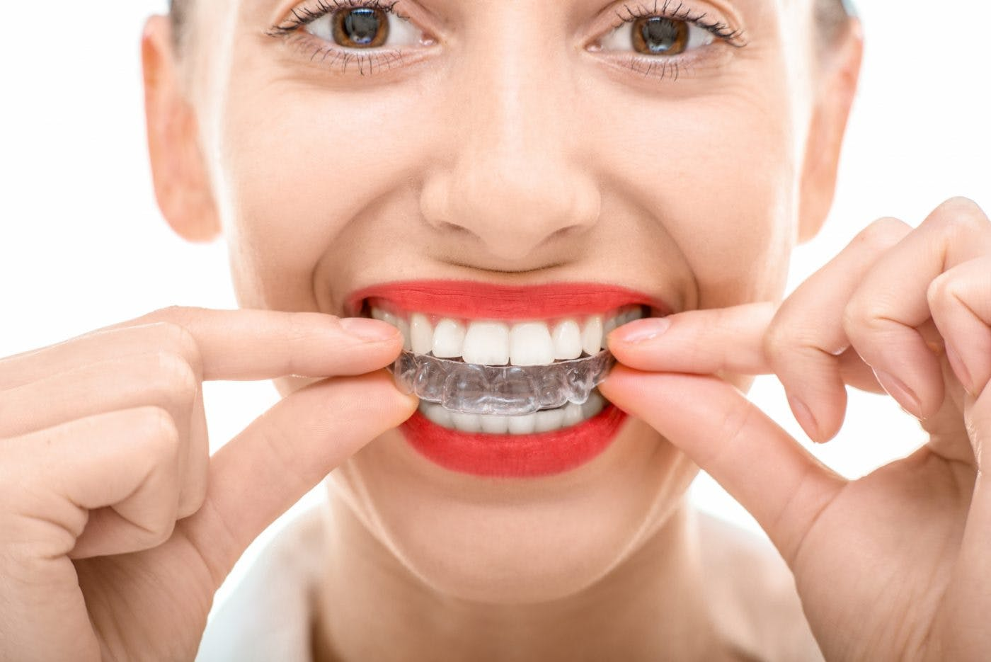 Finaghy Orthodontics Clear Aligners