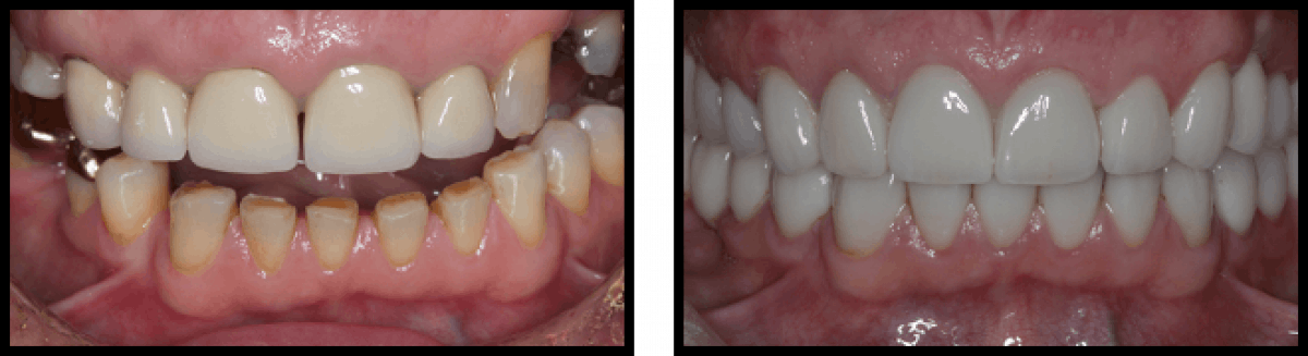 Case 2 Crowns Full Mouth