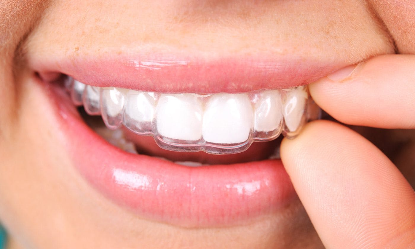 Hayes Dental Specialists Clear Braces