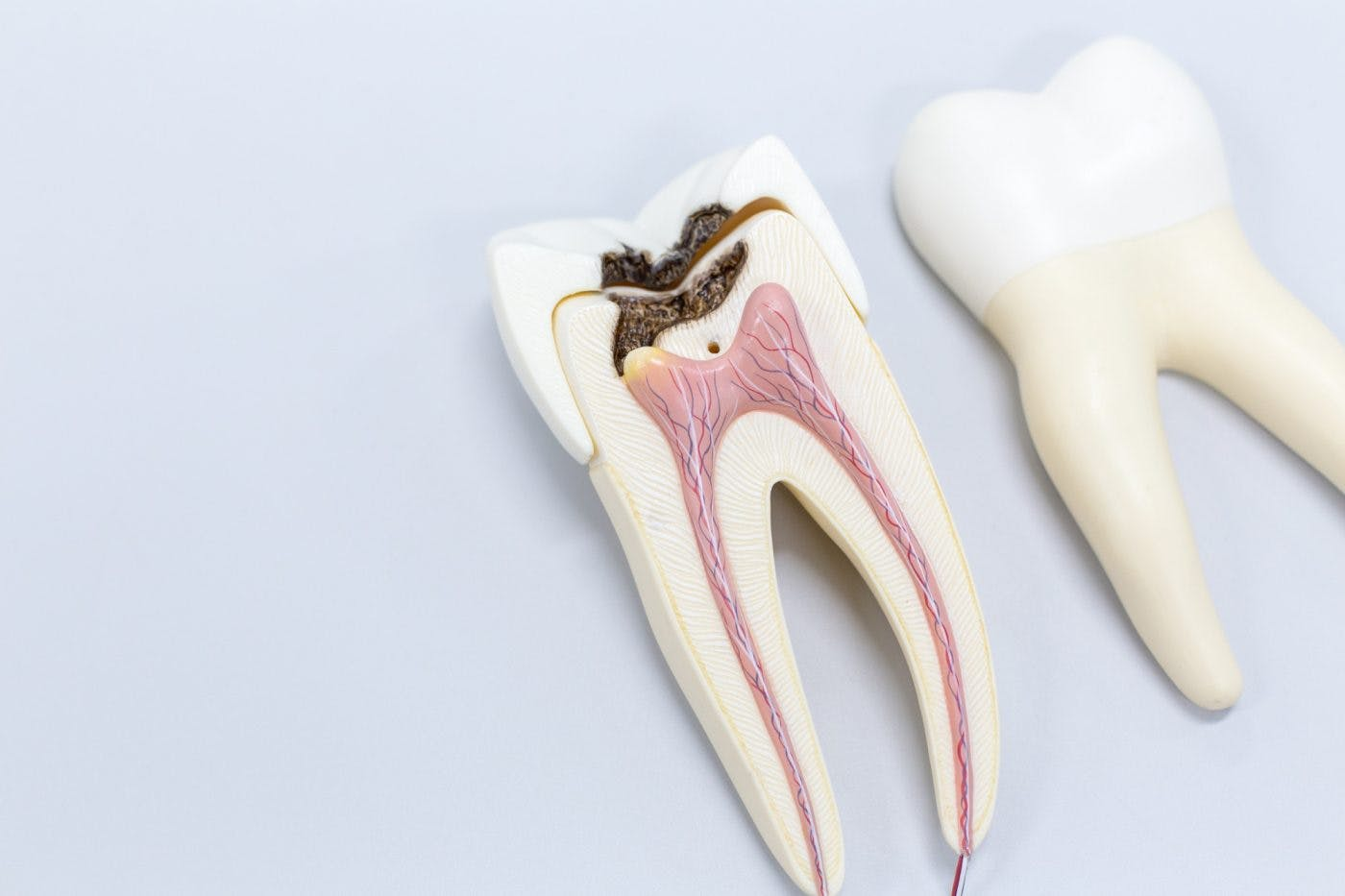 Hayes Dental Specialists Root Canal