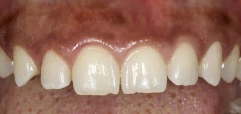 Hayes Dental Specialists Bonding Case 3 Before