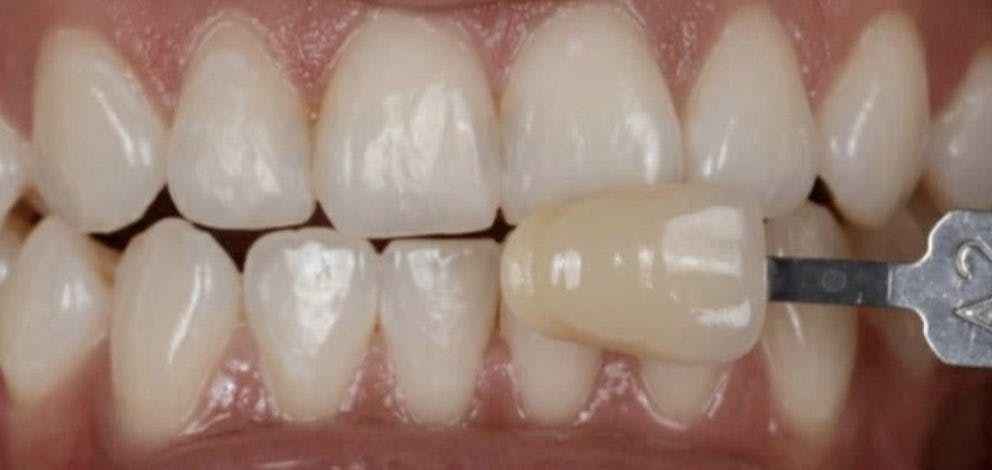 Hayes Dental Specialists Whitening Case 1 After