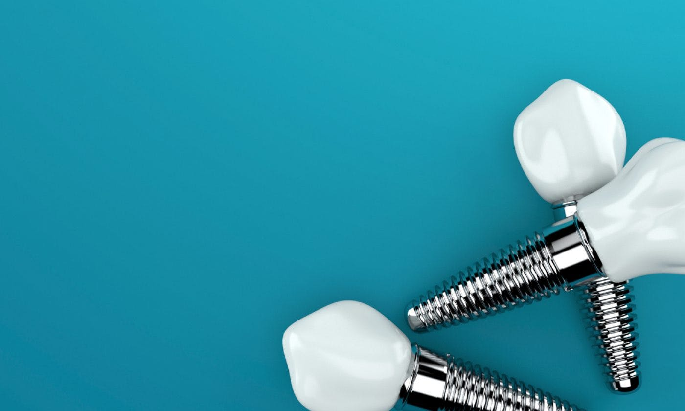 Implants College Street Dental Implant Clinic