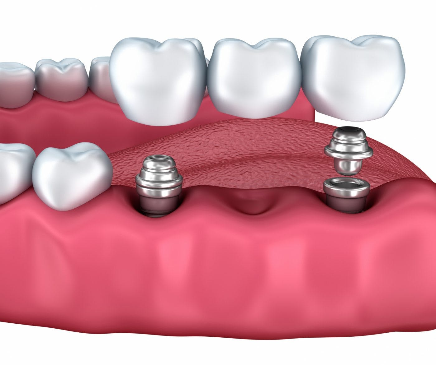 Townview Multiple Implants