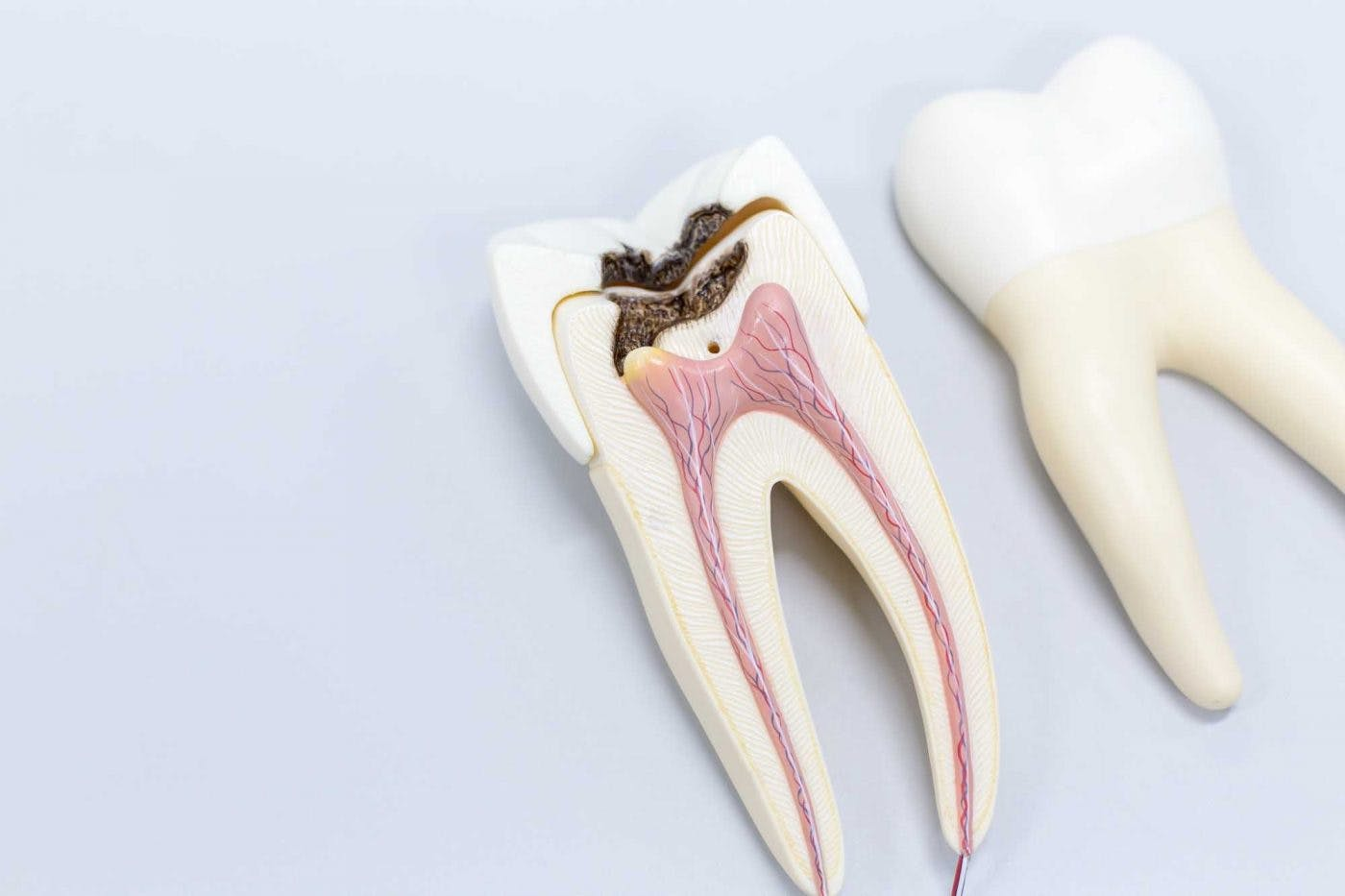 Root Canal Tooth Treatment