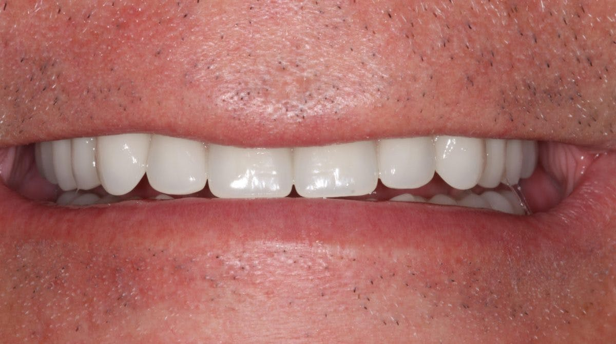 Same Day Teeth After Smile 1