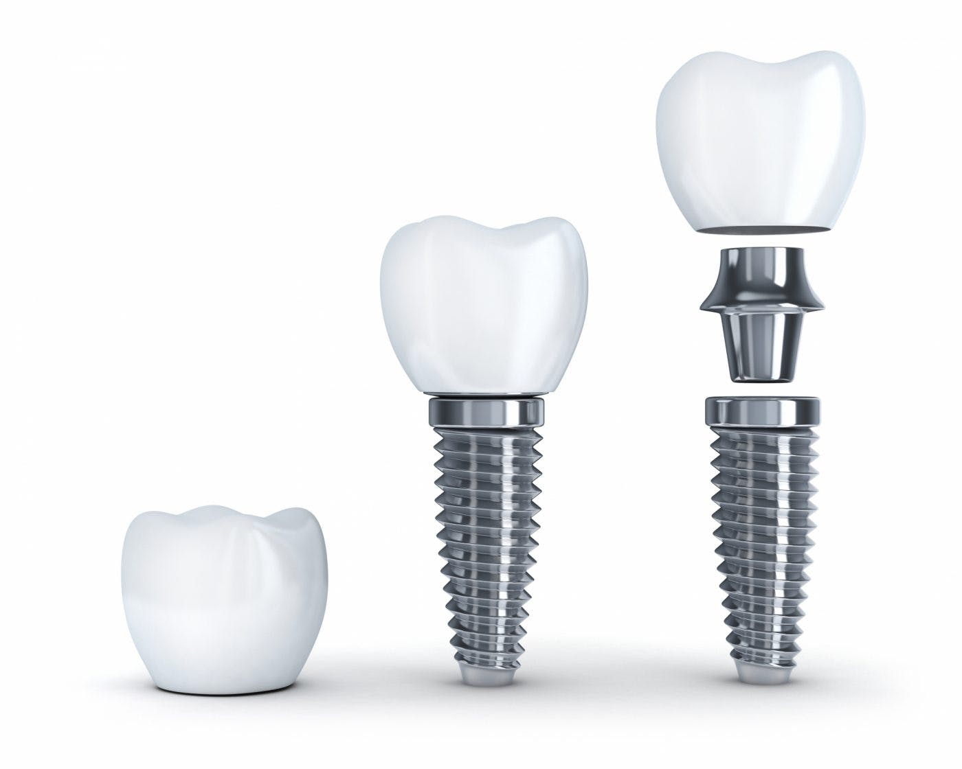 Haynes Dental Implants 1