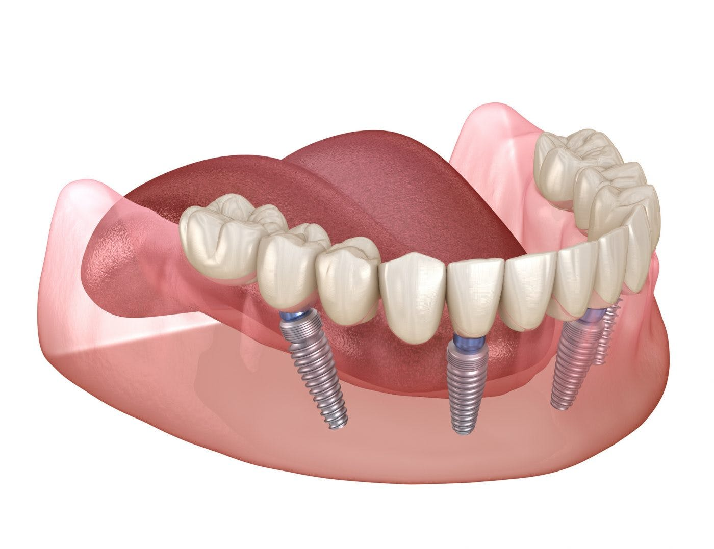 Dental Implants Solutions Missing Teeth 2
