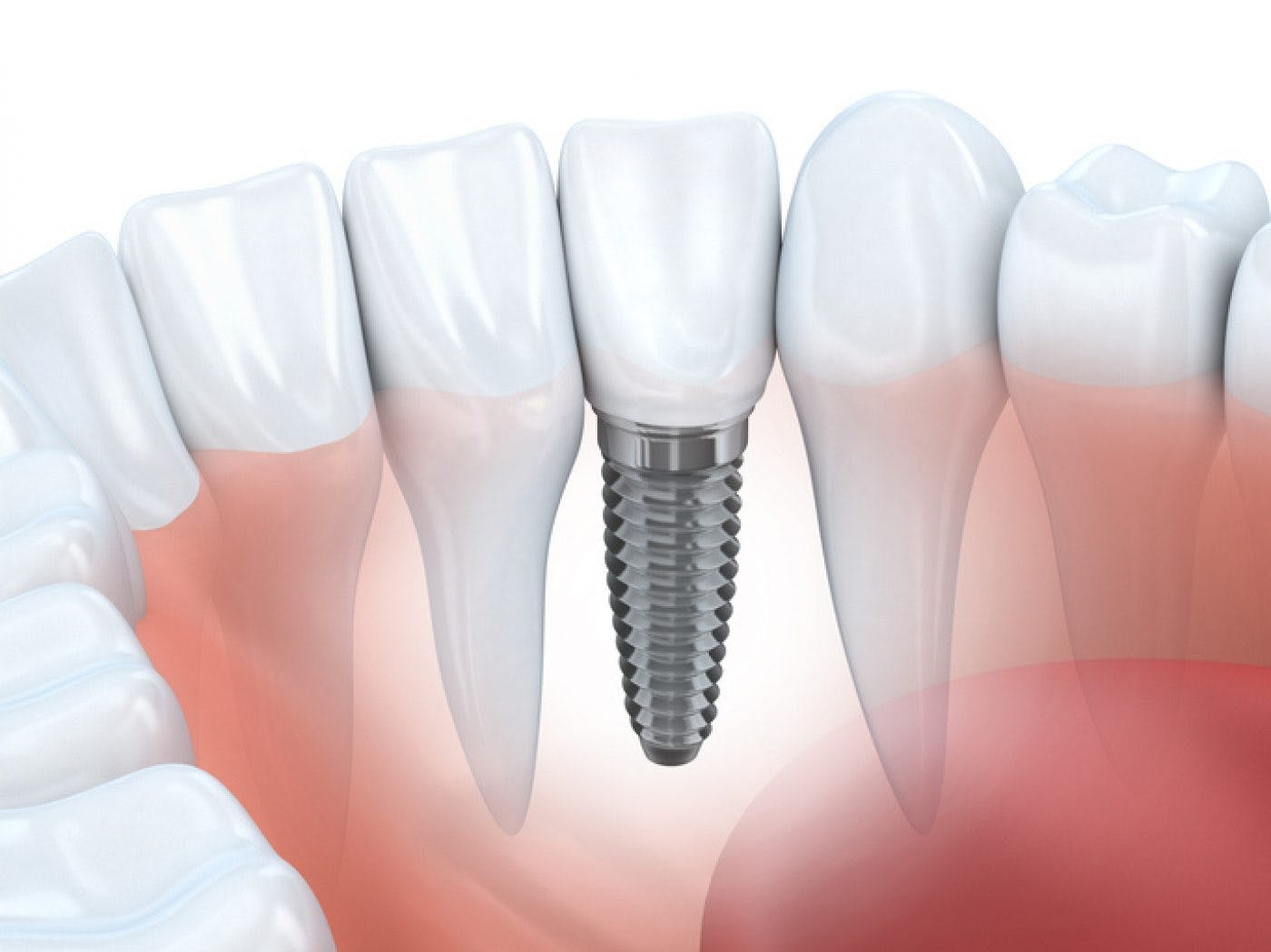 Rainham Single Implant