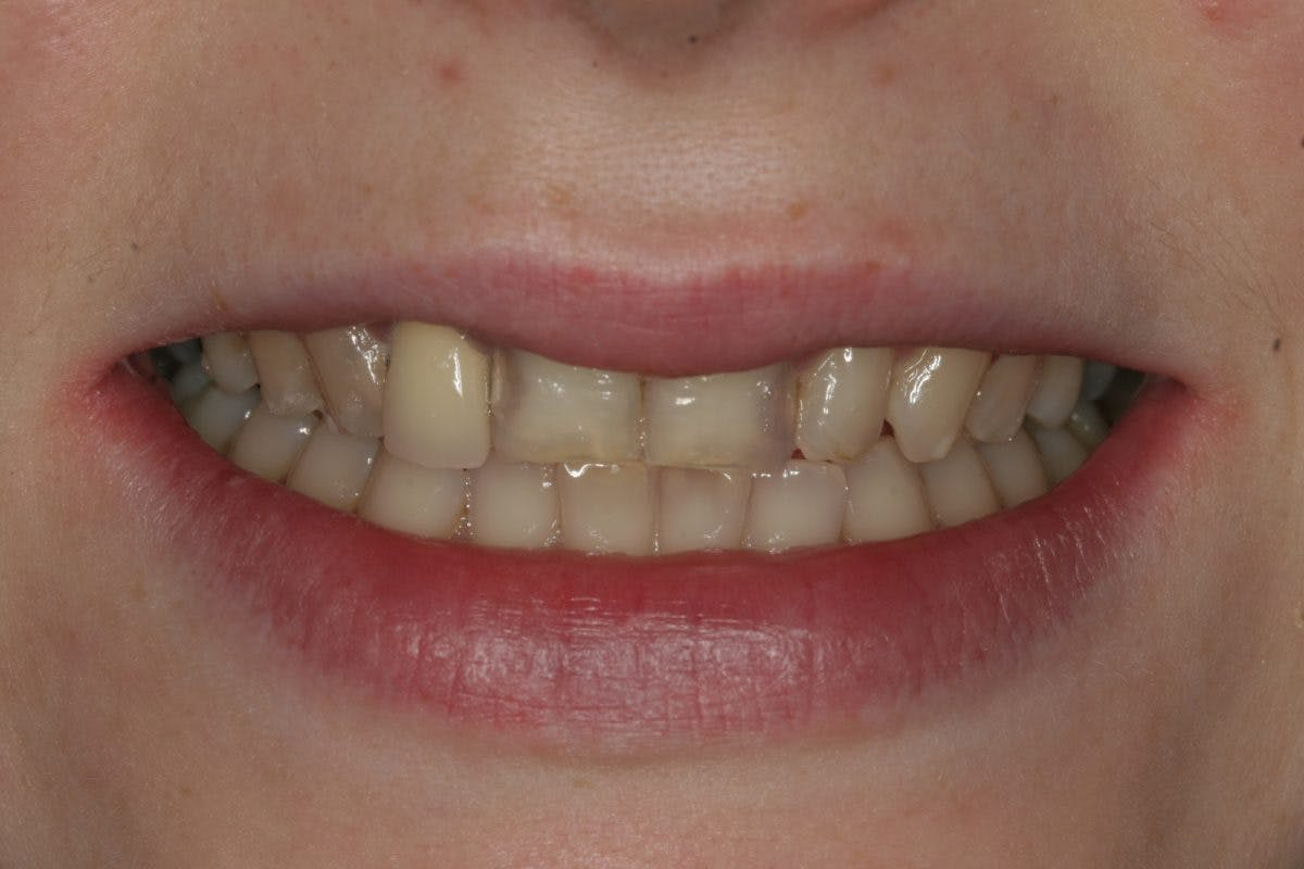 Pre Treatment Close Up Smile 028