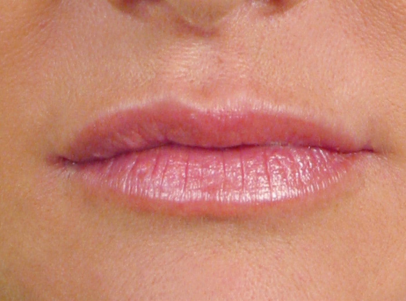 Lip Definition Volume After Av Ap2B