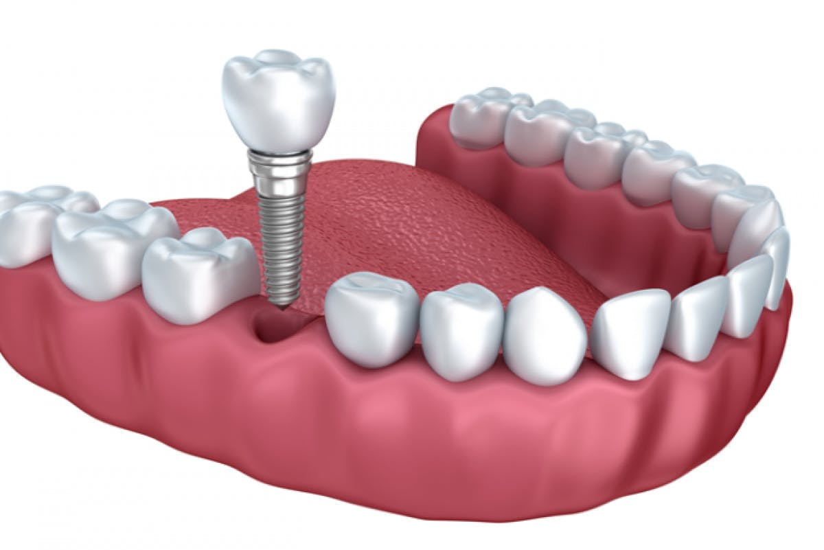 Portman Dental & Implant Clinic Launceston Single Implant