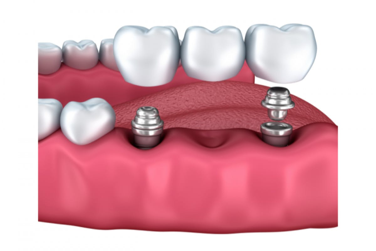 Portman Dental & Implant Clinic Launceston Multiple Implant