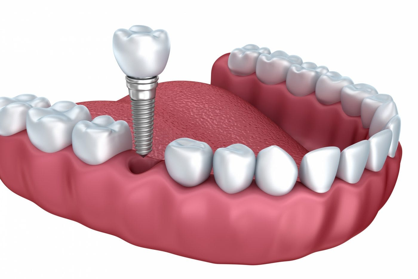 Single Dental Implant 537432362